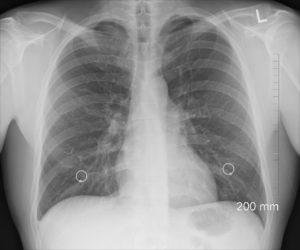 диагностика диафрагмального спазма